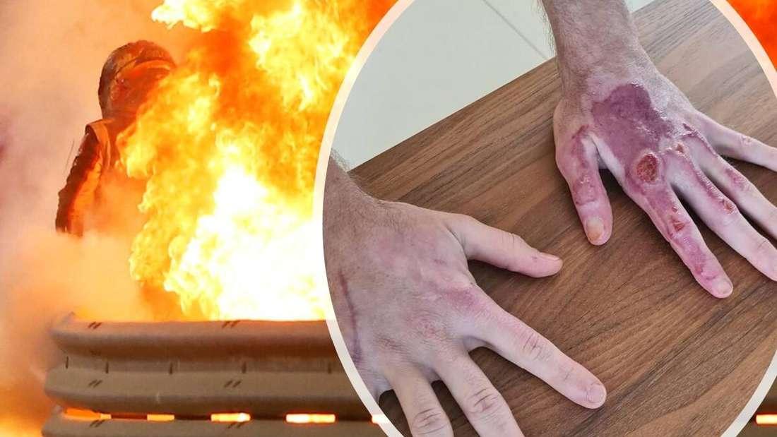 Der Feuer-Unfall beim Formel-1-Rennen in Bahrain (hinten) und Romain Grosjeans verbrannte Hände (vorne)